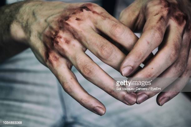 cropped image of bruised hands of man - bruise stock photos and pictures