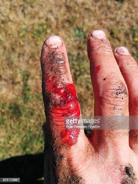 cropped image of hand bleeding against field - wounded stock photos and pictures
