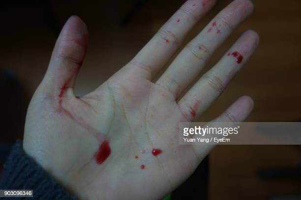 cropped image of hand with blood - sangre humana fotografías e imágenes de stock