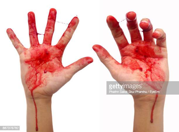 Cropped Image Of Hands With Blood Over White Background