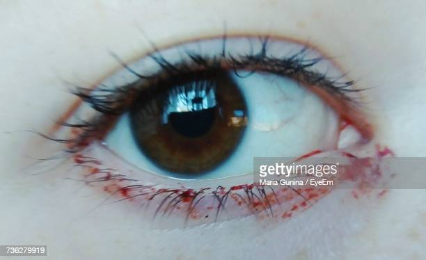 cropped image of human eye with blood - eye injury stock pictures, royalty-free photos & images
