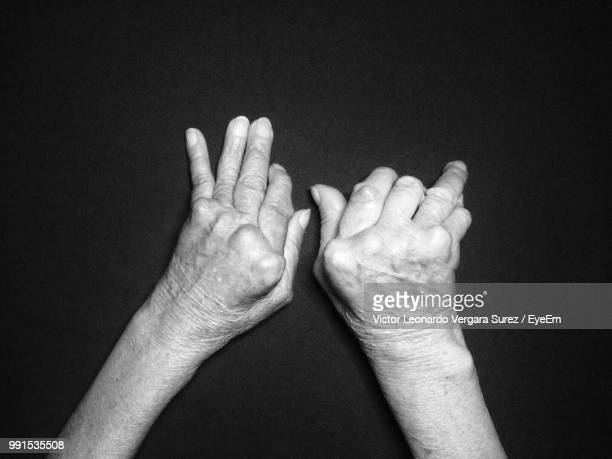 cropped image of man with deformed hands on table - deformed hand stock pictures, royalty-free photos & images