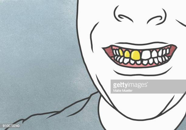 cropped image of man with gold tooth against gray background - gold tooth stock photos and pictures