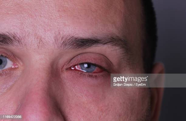 cropped image of man with sore eye - bloodshot stock pictures, royalty-free photos & images