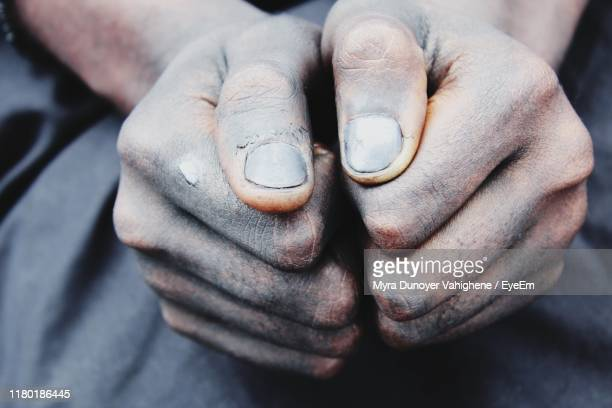 cropped image of person showing dirty hands - myra dunoyer vahighene photos et images de collection