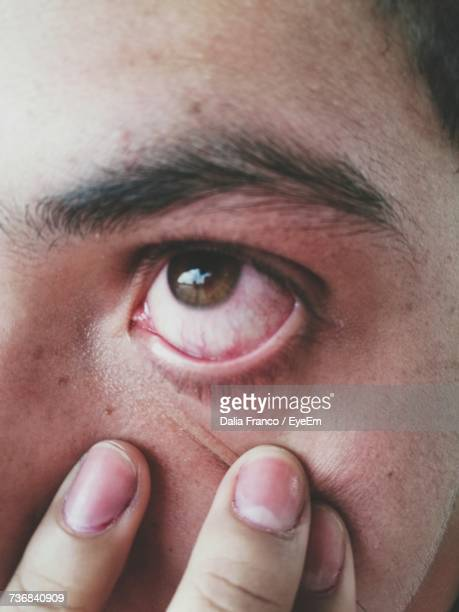 Cropped Image Of Person Touching Eye