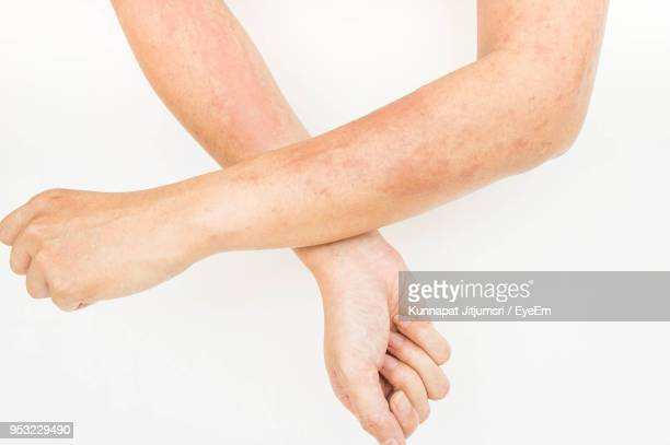cropped image of woman hands with dermatitis over white background - dermatitis fotografías e imágenes de stock