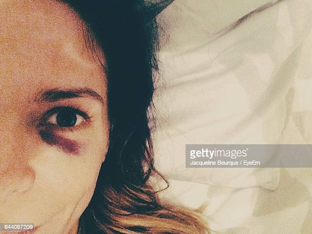 cropped image of woman with bruised eye relaxing on bed - bruise stock pictures, royalty-free photos & images