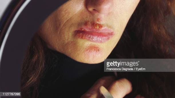 cropped image of woman with herpes on lips - herpes foto e immagini stock