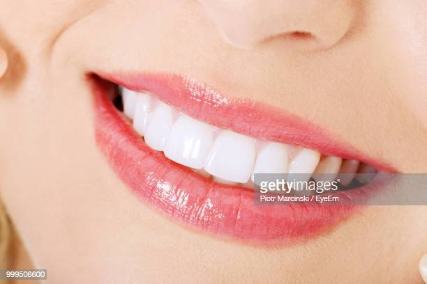 Cropped Image Of Woman With Toothy Smile