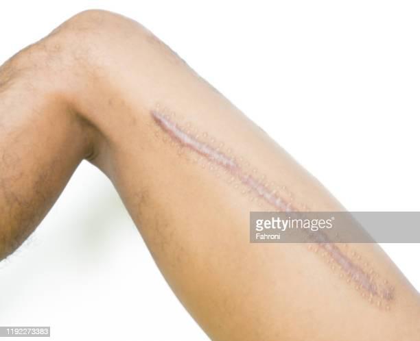 cropped leg of man with keloid against white background - femur fotografías e imágenes de stock