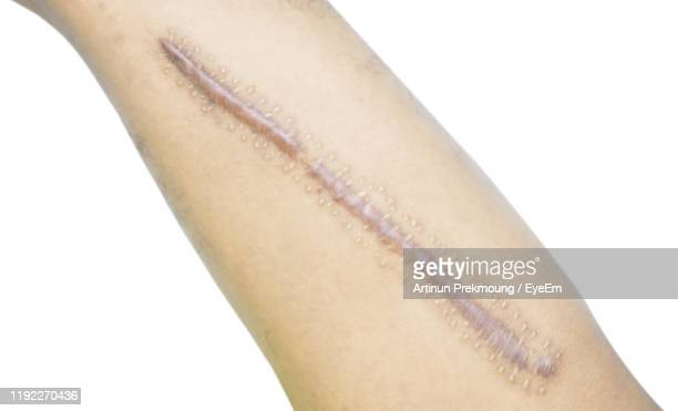 cropped leg with keloid against white background - keloid stock pictures, royalty-free photos & images