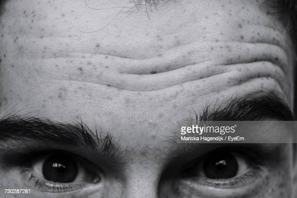 Cropped Portrait Of Man With Freckles On Forehead