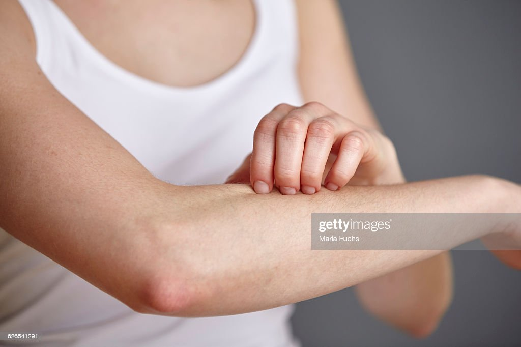 Cropped shot of young woman scratching her forearm with fingers : Stock Photo