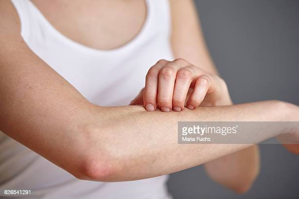 cropped shot of young woman scratching her forearm with fingers - human arm fotografías e imágenes de stock
