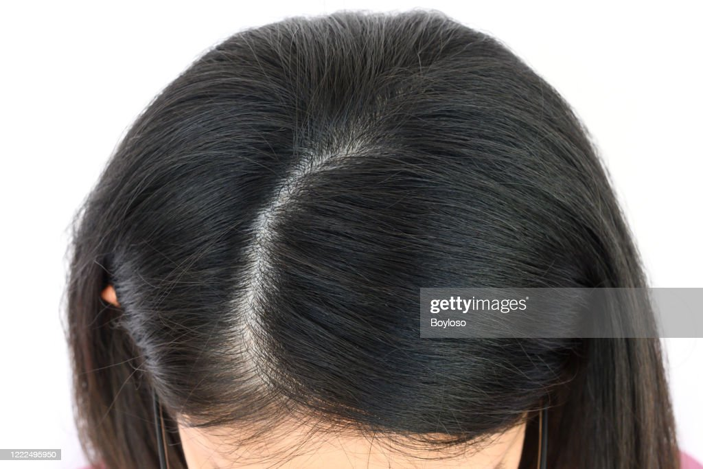 Cropped view of woman top's head with part of her thin hair, she had hair loss problem. : Stock Photo