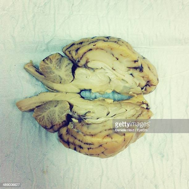 cross section of human brain - danielle reid stock pictures, royalty-free photos & images
