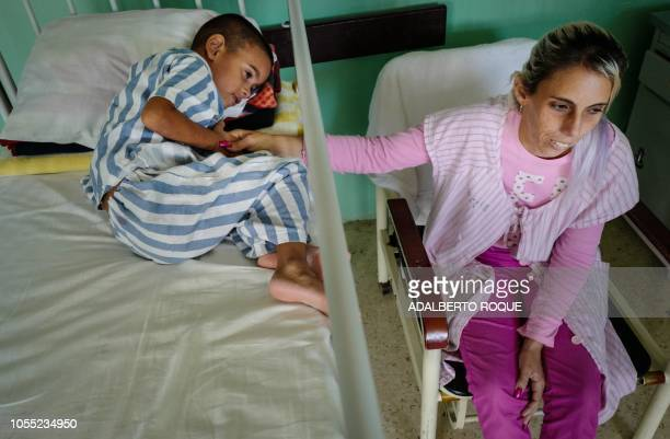 Cuban cardiology patient Antuane Lopez remains with his mother Yenny Gonzalez at Children's Cardiology Hospital William Soler in Havana, on September...