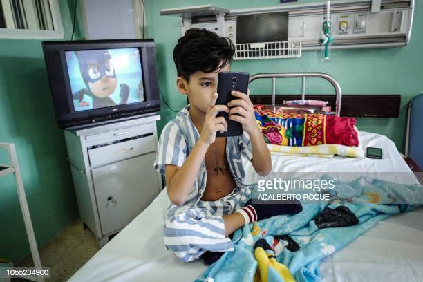 Cuban cardiology patient Carlos Garcells shows a picture of his heart surgery in a cell phone at Children's Cardiology Hospital William Soler in...