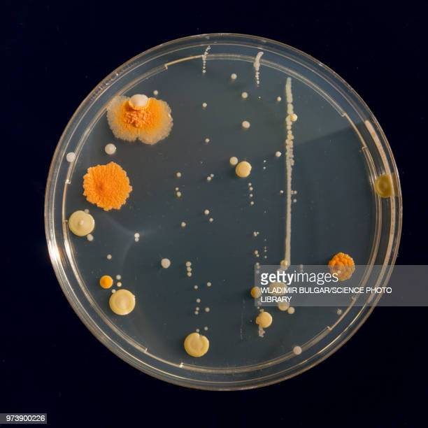cultures growing on petri dish - e coli stock photos and pictures