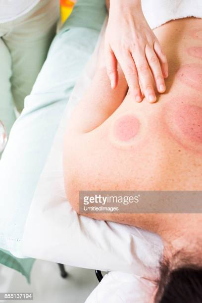 Cupping marks after removing acupuncture treatment. Vacuum cupping