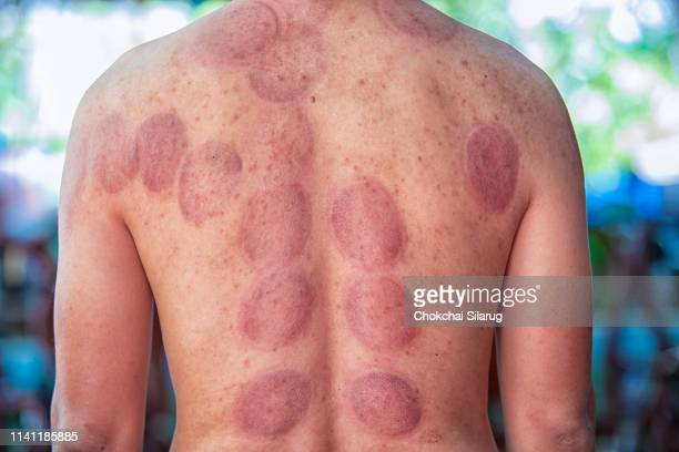 cupping treatment - bruise stock pictures, royalty-free photos & images