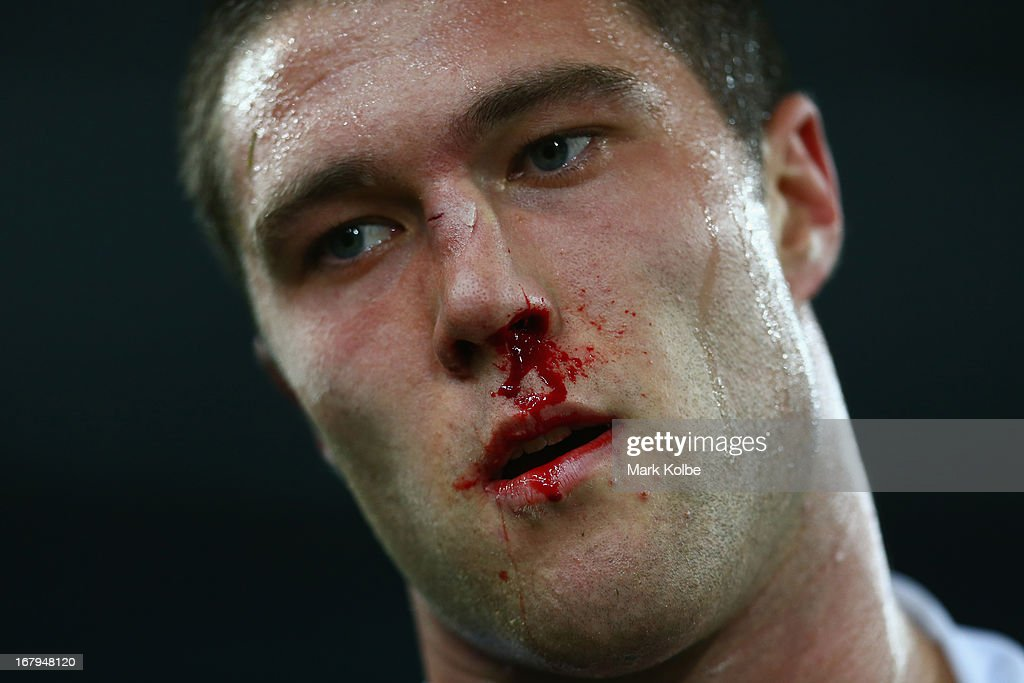 Curtis Sironen of the Tigers leaves the field with a blood nose during the round eight NRL match between the Bulldogs and the Wests Tigers at ANZ Stadium on May 3, 2013 in Sydney, Australia.