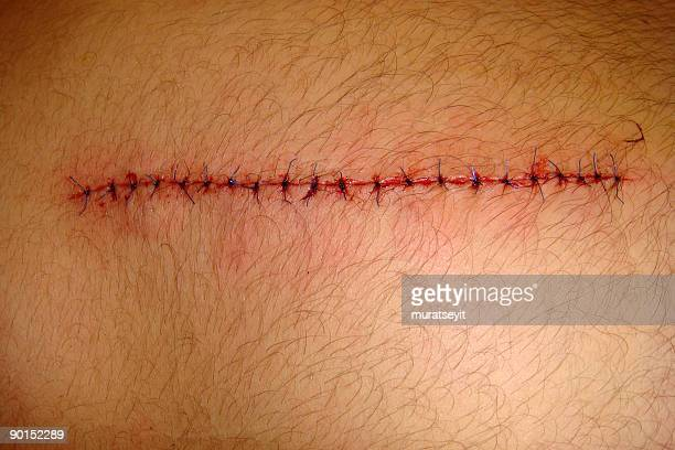 cut by a knife - medical stitches stock photos and pictures