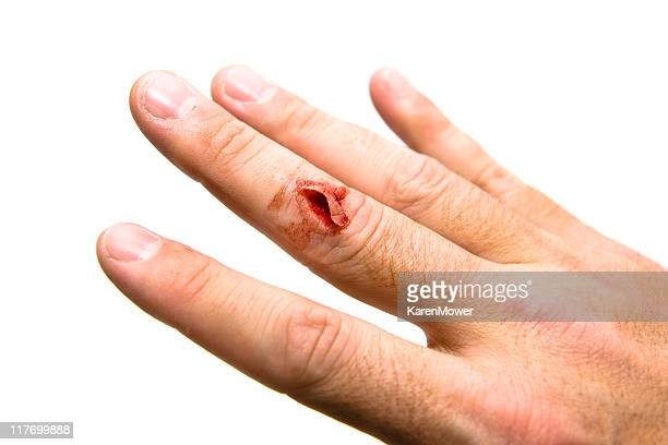 Cut Finger