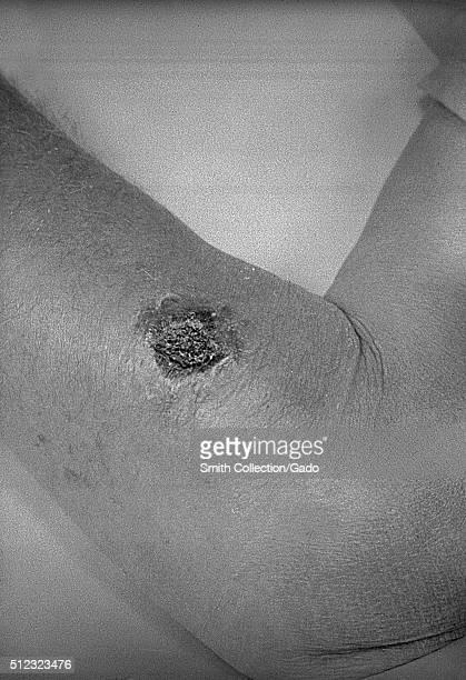 Cutaneous anthrax lesion on the left forearm Cutaneous anthrax on the skin of the left forearm Image courtesy CDC/J Steele 1962