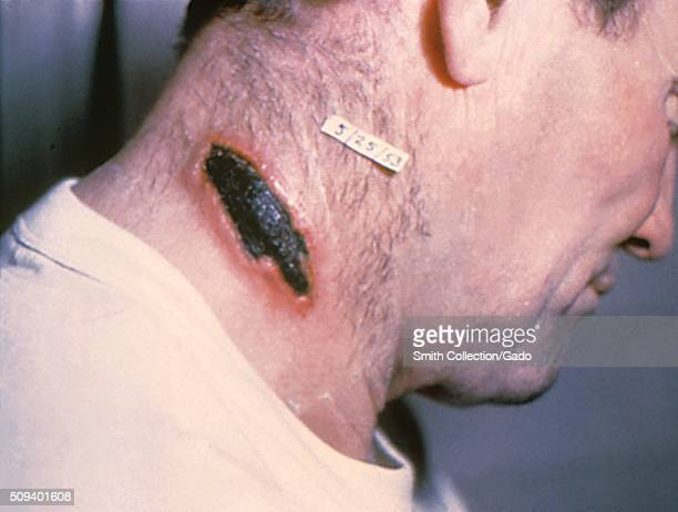 Cutaneous anthrax lesion on the neck Image courtesy CDC 1990
