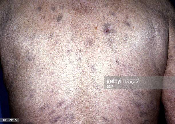 Cutaneous Lesions Due To The Leprosy Bacillus Hansen's Disease