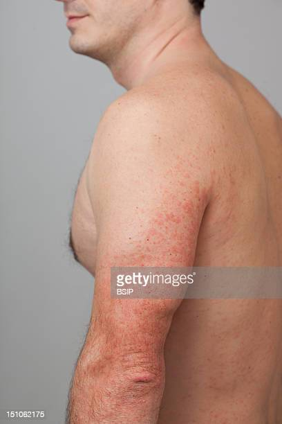 Cutaneous Reaction Type Urticaria Three Days After An Injection Of The Vaccine Against Influenza A H1N1