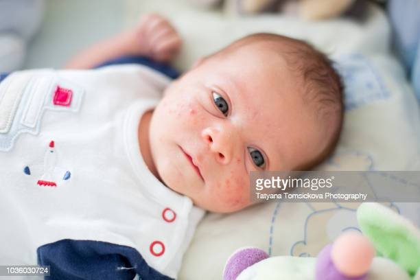 cute newborn baby boy, playing in crib, newborn acne rash on his face - eczema stock pictures, royalty-free photos & images