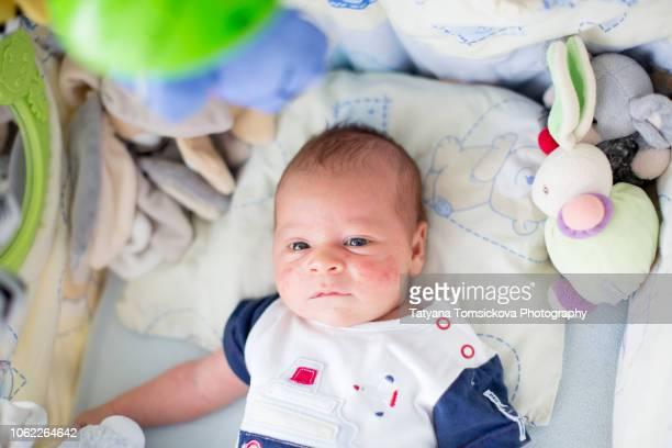 cute newborn baby boy, playing in crib, newborn acne rash on his face - eczema fotografías e imágenes de stock