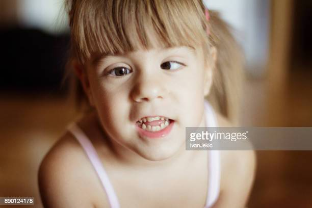 cute toddler girl with crossed eyes - cross eyed stock pictures, royalty-free photos & images