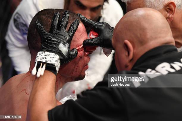 Cutman tends to the cut of Nate Diaz between rounds of his welterweight bout against Jorge Masvidal for the BMF title during the UFC 244 event at...