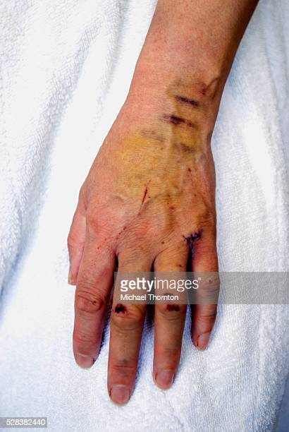 Cuts and bruises on a woman's hand