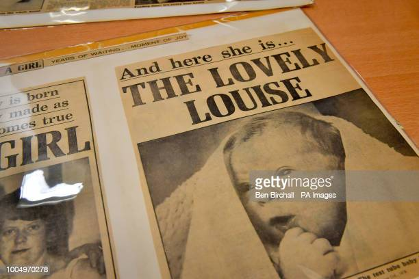 A cutting from the Daily Mail newspaper dated July 1978 which forms part of the Lesley Brown archive a collection of items relating to the birth of...