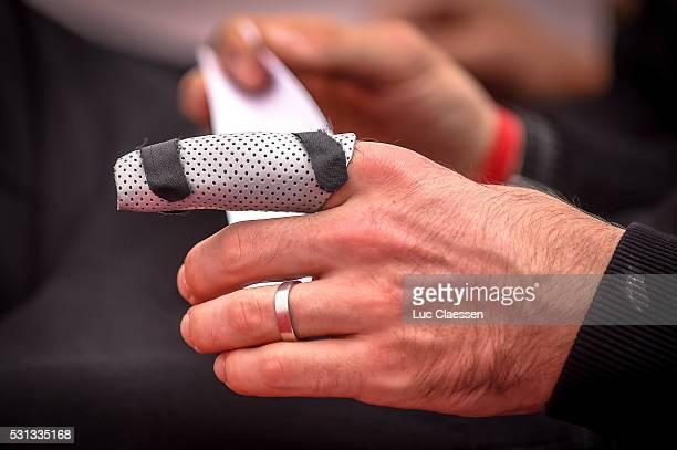 Team Giant Alpecin / Press Conference John / Injury Blessure Finger Vinger / PC / Paris Roubaix Parijs /