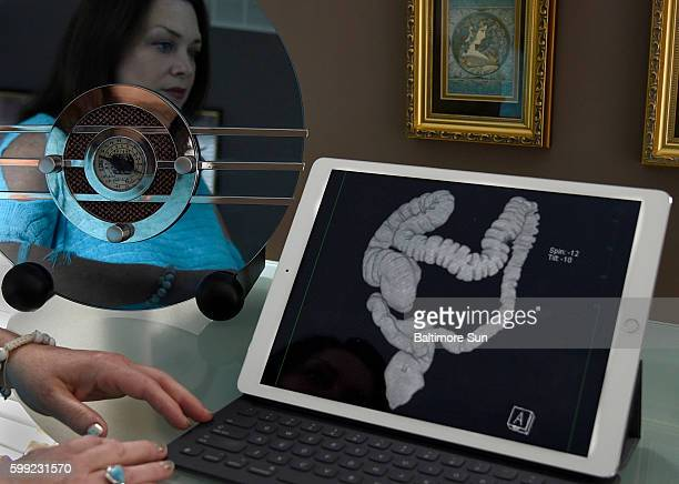 Cynthia Bledsoe looks at a laptop computer that displays an image from her virtual colonoscopy
