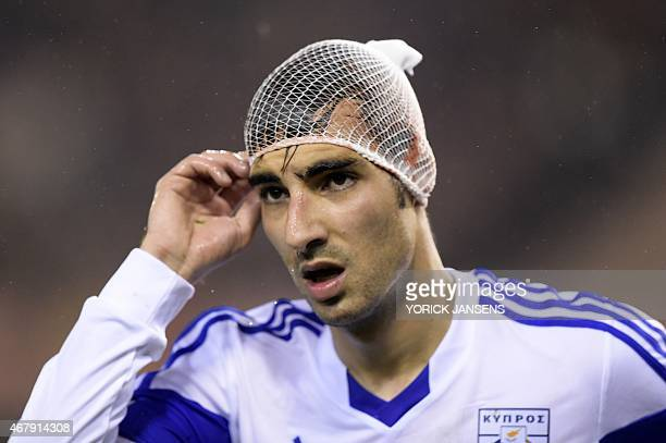 Cyprus' Marios Antoniades touches his head after being injured during the Euro 2016 qualifying round football match between Belgium and Cyprus at the...