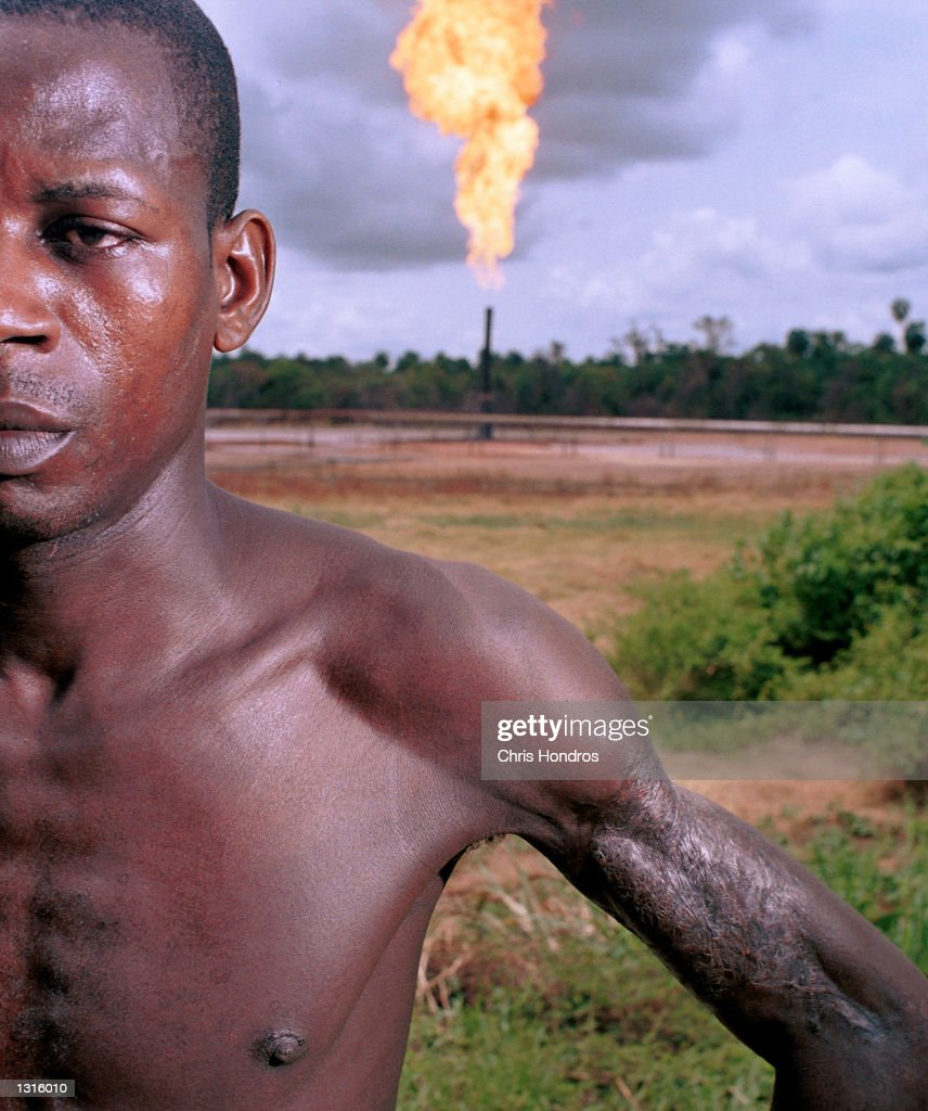 Dagogo Joel''s arm was burned by the Oshie gas flare when he was a child. The flare, which has been lit since 1972, and is adjacent to Joel''s home village of Akaraolu, Nigeria, occasionally spews out flaming liquids on the countryside, and it burned Akiri while he was fishing with his father. Most villagers don''t even remember a time before what they simply call 'The Fire' loomed over their lives.