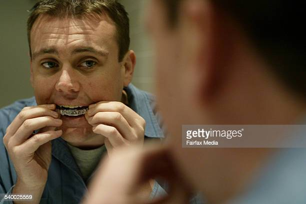 Damien Excell who has invisible adult braces on his teeth 2 June 2006 SHD HEALTH Picture by ANTHONY JOHNSON