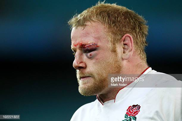 Dan Cole of England is pictured after the Cook Cup Test Match between the Australian Wallabies and England at ANZ Stadium on June 19 2010 in Sydney...