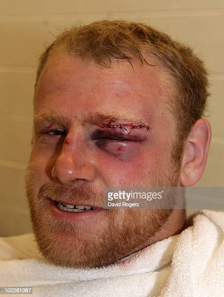Dan Cole smiles despite having stitches in a cut eyebrow after the Cook Cup Test Match between the Australian Wallabies and England at ANZ Stadium on...