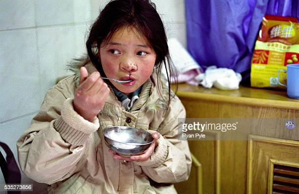Dandan Men 11 years old has some food a day after her surgery She has travelled over 100 km to receive a free Cleft Lip and Cleft Palate surgery...
