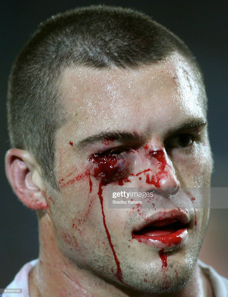 Daniel Conn of the Titans walks off with facial injuries after being punched by Michael Weyman of the Raiders during the round four NRL match between the Gold Coast Titans and the Canberra Raiders at Skilled Stadium on April 5, 2008 at Robina, Australia.