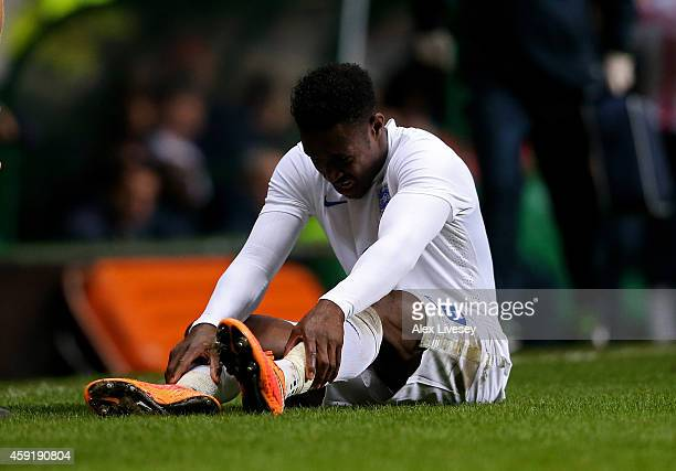 Daniel Welbeck of England goes down injured during the International Friendly match between Scotland and England at Celtic Park Stadium on November...