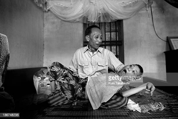 Dao Van Loi holds his daughter Dao Thi Mai who suffers from severe developmental and disability problems on June 23 2009 in Thai Binh Province in...